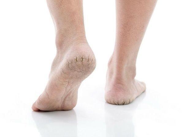 kaki pecah-pecah